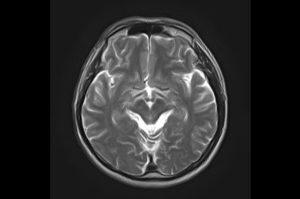 頭部アキシャルのMRI画像